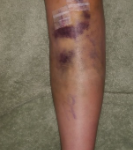 ACL Tears, Surgery, and Recovery